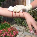 Survival Medicine 101 Part 6: How To Treat Cuts, Scrapes and Scratches