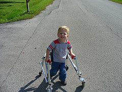 handicapped-boy