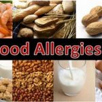 5 Natural Remedies For Food Allergies