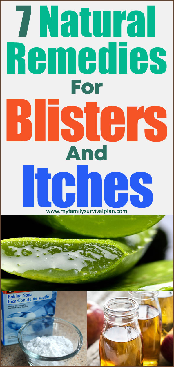 Natural Remedies For Blisters And Itches