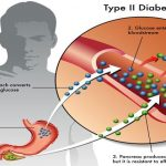 Type-2 Diabetes – Reduce Medication with a Healthy Eating Plan