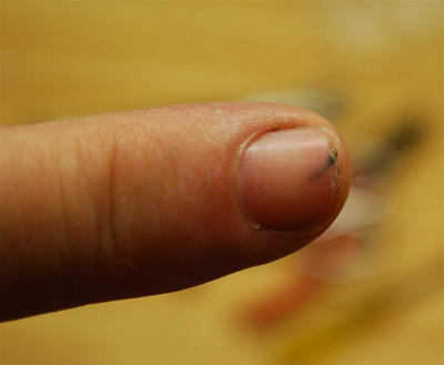 splinter fingernail